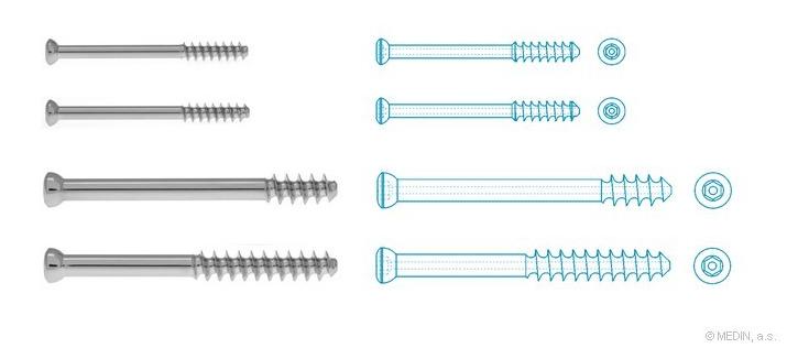 osteosynthesis screws Evaluating periarticular screw margins for locking plate osteosynthesis sheriff d akinley, ramin sadeghpour, maya d culbertson, garret garofolo-gonzalez and jack.